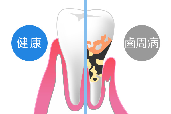 歯周病の恐ろしさ【全身疾患との関係性】